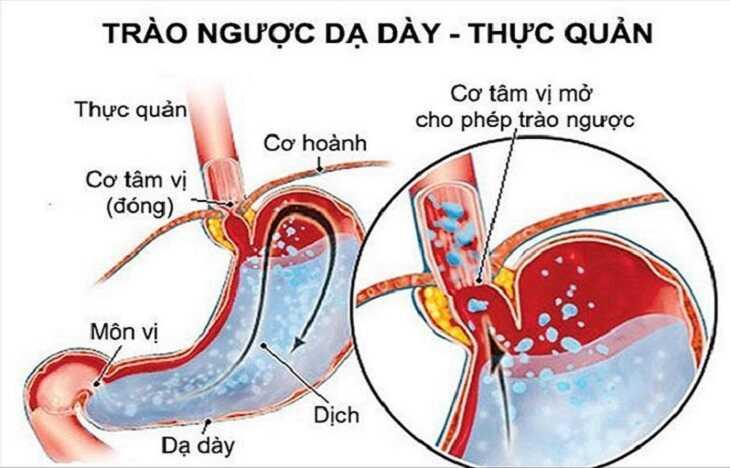 Axit dạ dày sẽ trào ngược lên trên khi cơ tâm vị mở