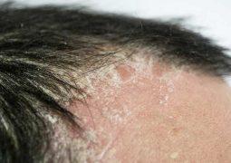 Vảy nến da đầu có thể phát sinh biến chứng trong thời gian ngắn