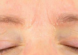 Vảy nến da mặt là bệnh tự miễn phổ biến nhiều người gặp phải