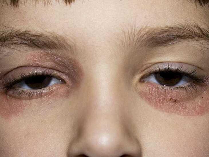 Da mặt bị khô, xuất hiện lớp sừng dày khi bị vảy nến