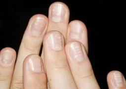 Vảy nến móng tay là bệnh da liễu phổ biến bất kỳ ai cũng có thể bị