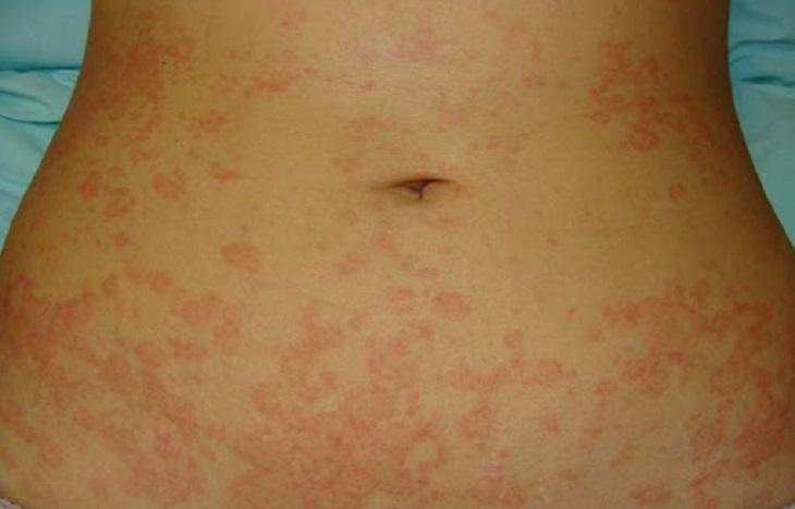 Chẩn đoán bệnh vảy hồng thông qua các triệu chứng lâm sàng
