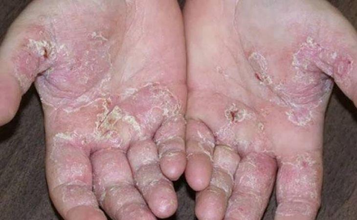 Hình ảnh da bị bội nhiễm do á sừng