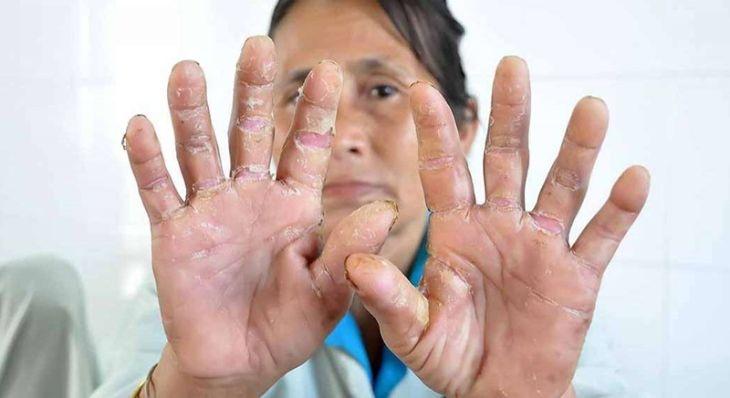 Tìm hiểu một số phương pháp chữa bệnh á sừng ở tay phổ biến