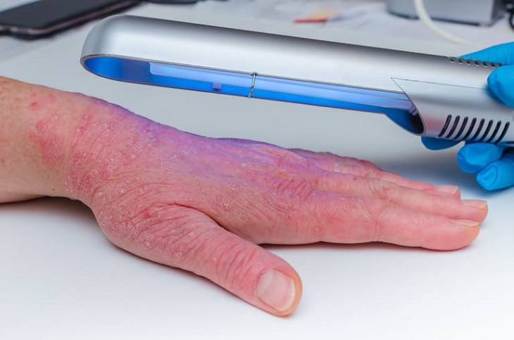 Điều trị vảy nến bằng UVB có thực sự đem lại hiệu quả cao và giúp bệnh không tái phát lại hay không?