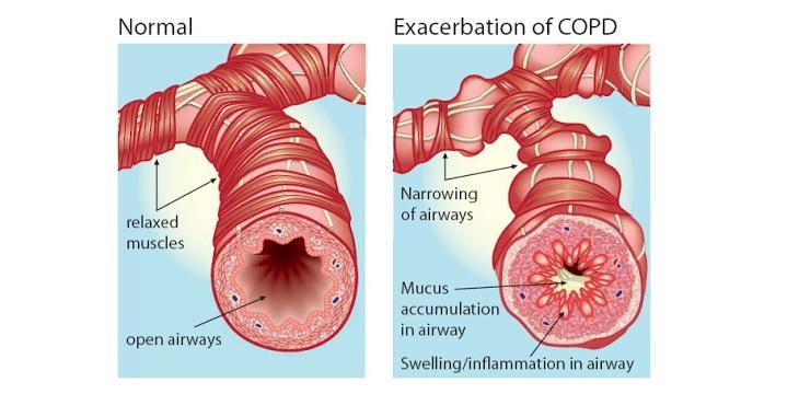 Cơ chế của bệnh tắc nghẽn phổi mãn tính gây khó thở cho người bị rối loạn giấc ngủ