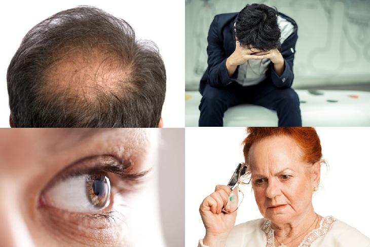 Một số hệ lụy của khó ngủ, rối loạn giấc ngủ làm rụng tóc