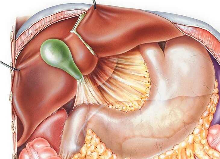 Trào ngược dịch mật có thể gây ra nhiều biến chứng nguy hại cho sức khỏe