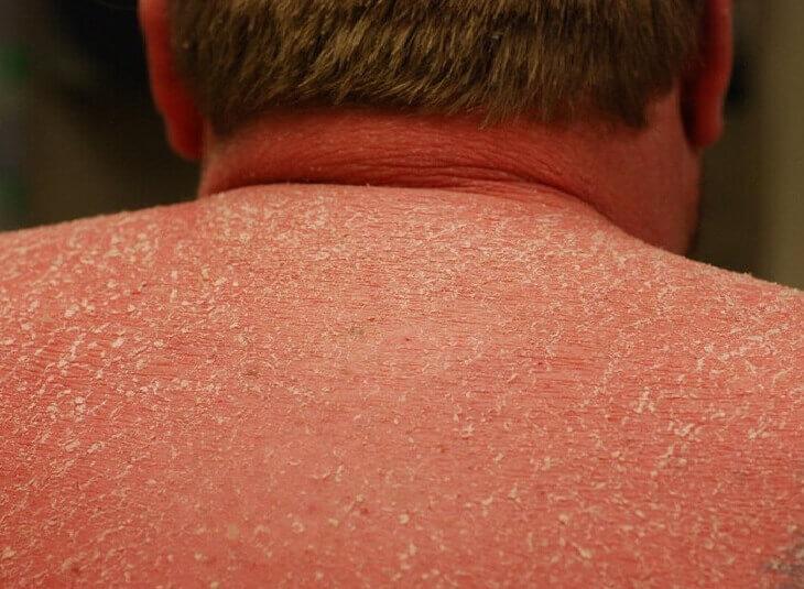 Người bị vảy nến thường có da đỏ ửng, thô ráp, ngứa ngáy và bong tróc