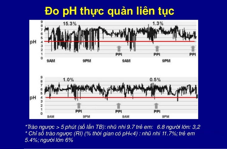 Đô độ pH thực quản 24h giúp xác định nồng độ axit trào ngược