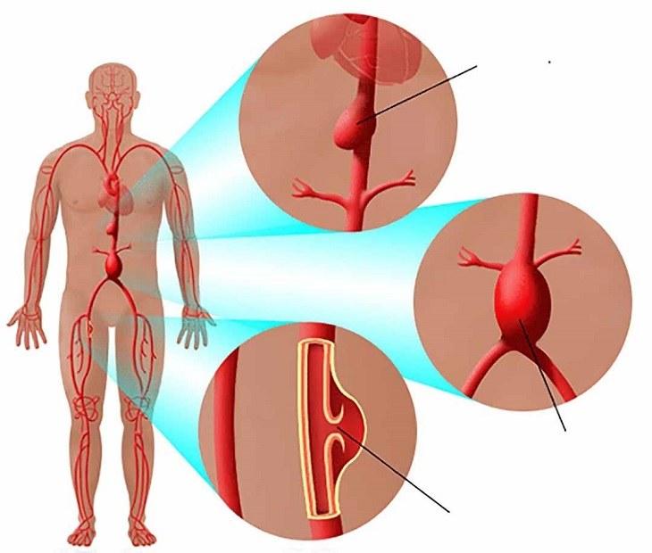 Vỡ, giãn tĩnh mạch là một trong những nguyên nhân xuất huyết dạ dày