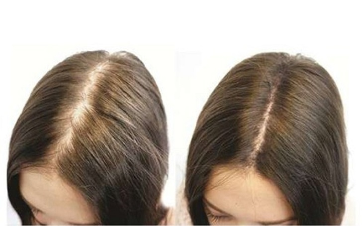 Tổng hợp danh sách các loại thuốc chống rụng tóc và kích thích mọc tóc tốt nhất