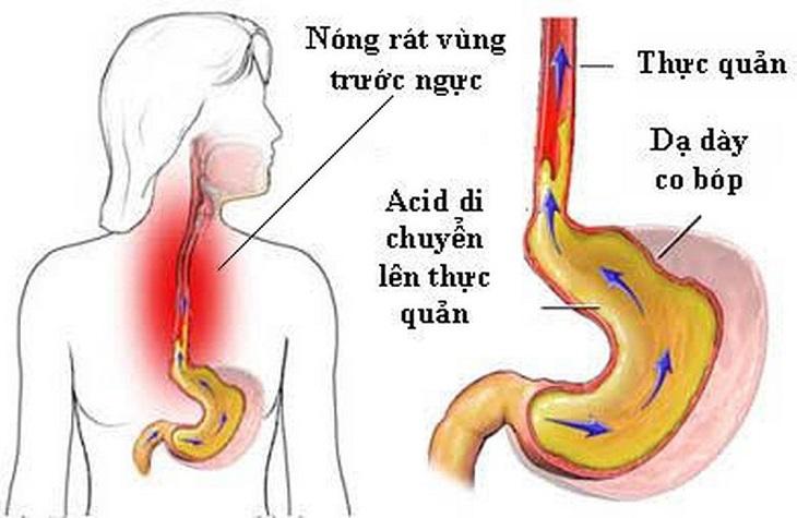 Viêm hang vị trào ngược thực quản là tình trạng acid tại dạ dày trào ngược lên trên