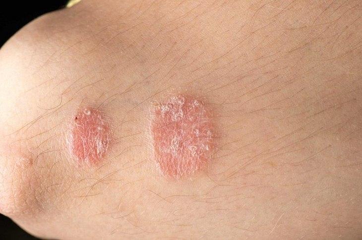 Bệnh vảy nến có lây không, các chuyên gia cho biết không lây qua tiếp xúc trực tiếp