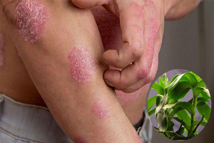Lưu ý khi dùng cây lược vàng chữa bệnh