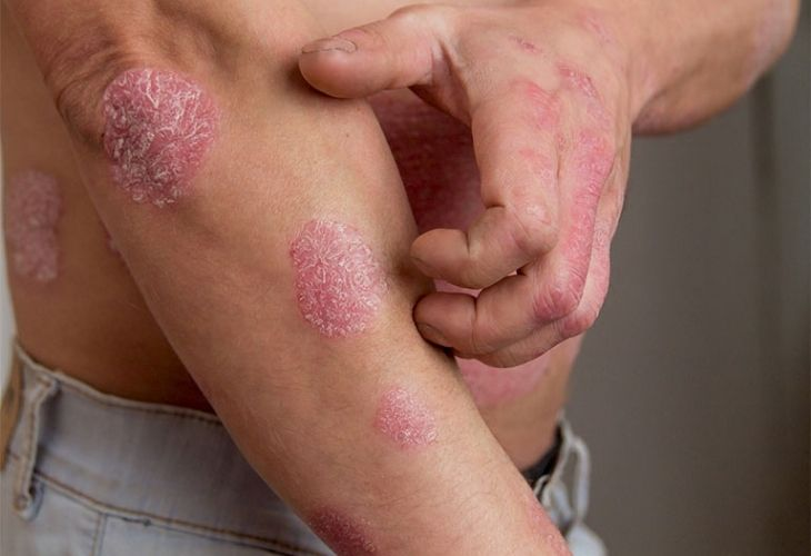 Hình ảnh bệnh nhân bị vảy nến thể mảng ở cánh tay