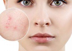 [Lộ diện] 11 loại thuốc trị mụn tuổi dậy thì cho làn da tươi sáng