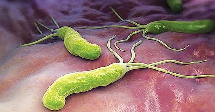 Vi khuẩn HP - Nguyên nhân hàng đầu gây u hang vị dạ dày