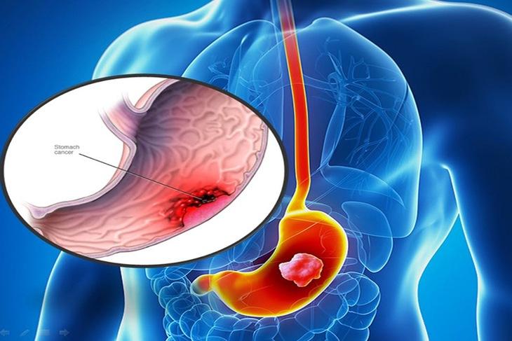 Ung thư dạ dày giai đoạn 2