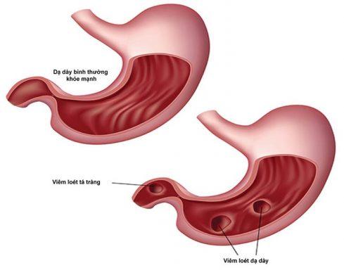 viêm hang vị dạ dày trào ngược dịch mật
