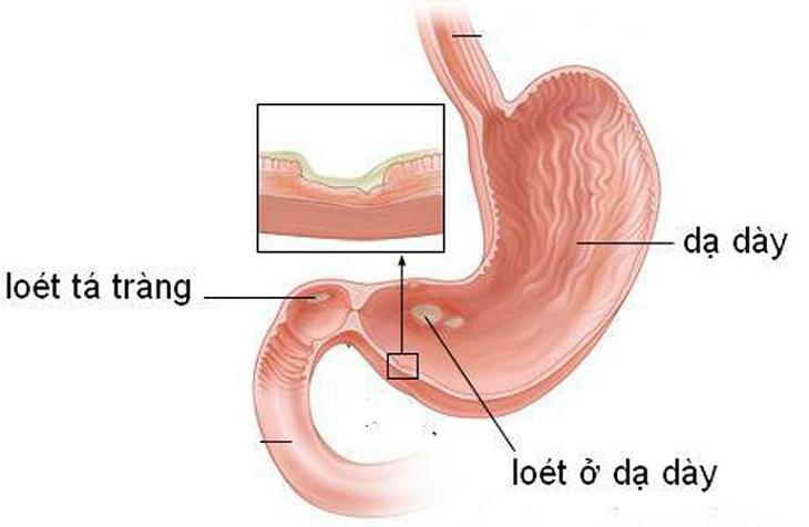 Viêm loét dạ dày trước đó có thể là nguyên nhân gây bệnh