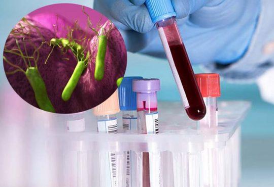 Hình thức xét nghiệm máu HP có chính xác không? Lưu ý