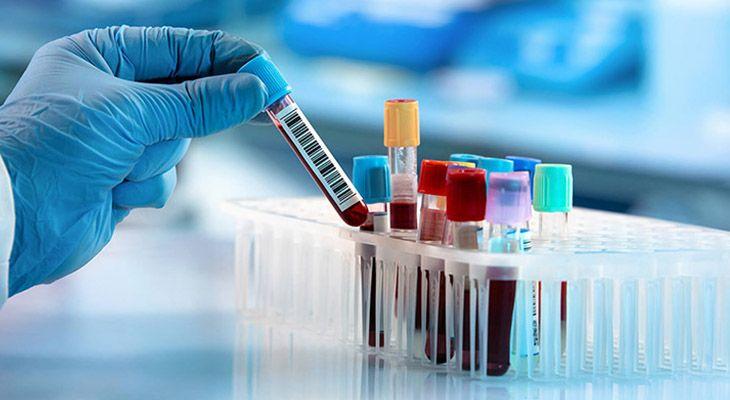 Xét nghiệm vi khuẩn HP giúp phát hiện sớm HP trong đường tiêu hóa
