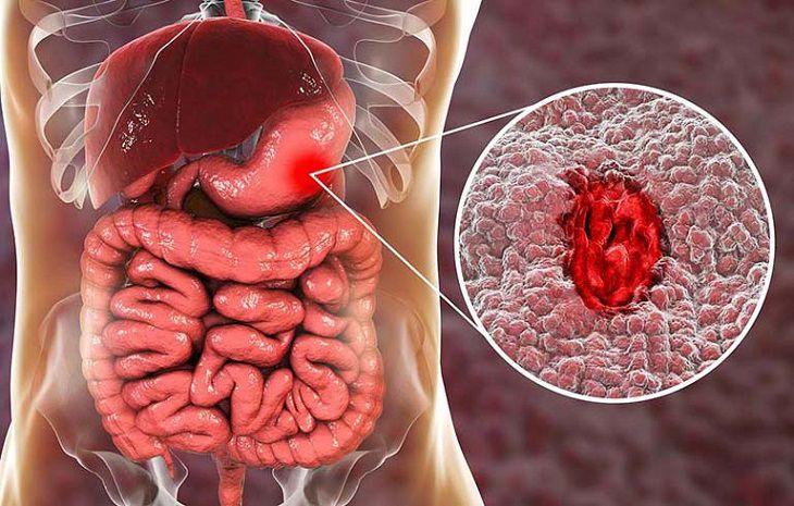 Xuất huyết dạ dày là tình trạng mà nhiều người gặp phải hiện nay