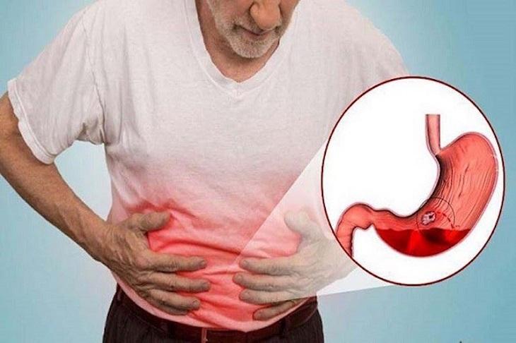 Bệnh cần sớm được điều trị để tránh những biến chứng nguy hiểm