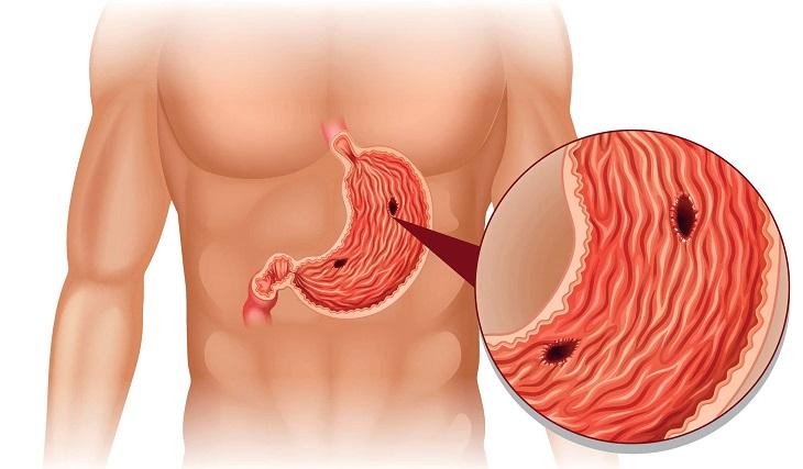 Nhiều trường hợp nặng có thể gây nên thủng dạ dày