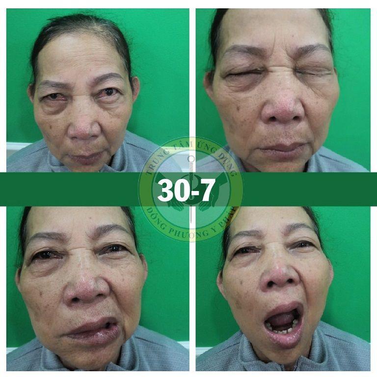 Hình ảnh trong buổi đầu trị liệu của cô Đỗ Thị Lá