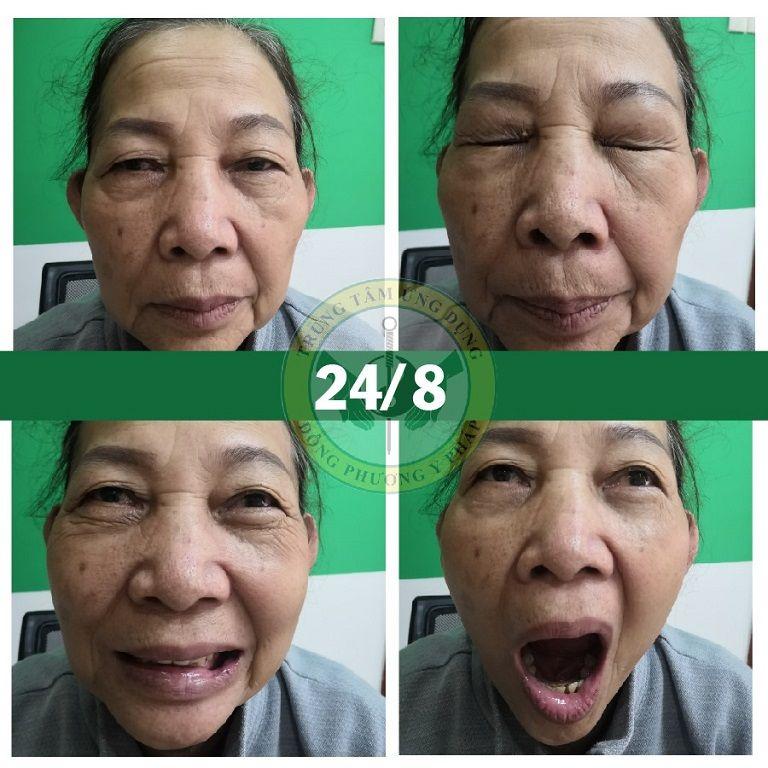 Hình ảnh trong buổi trị liệu thứ 3 của cô Đỗ Thị Lá