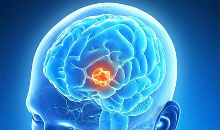 Đau đầu ở thái dương bên phải, trái có thể là biểu hiện của u não.