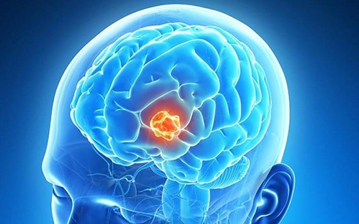 U não là bệnh lý nguy hiểm đến tính mạng