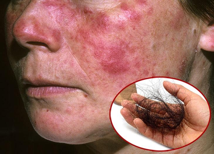 Lupus ban đỏ có thể là nguyên nhân gây nên hiện tượng rụng tóc, đau đầu
