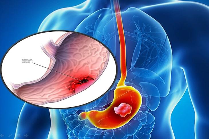 Ung thư dạ dày giai đoạn 1 là một bệnh lý nguy hiểm với nguy cơ tử vong lớn