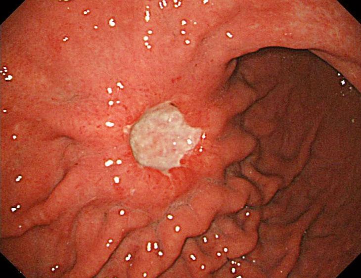 Ung thư dạ dày giai đoạn 3 là lúc khối u đã trở nên lớn hơn