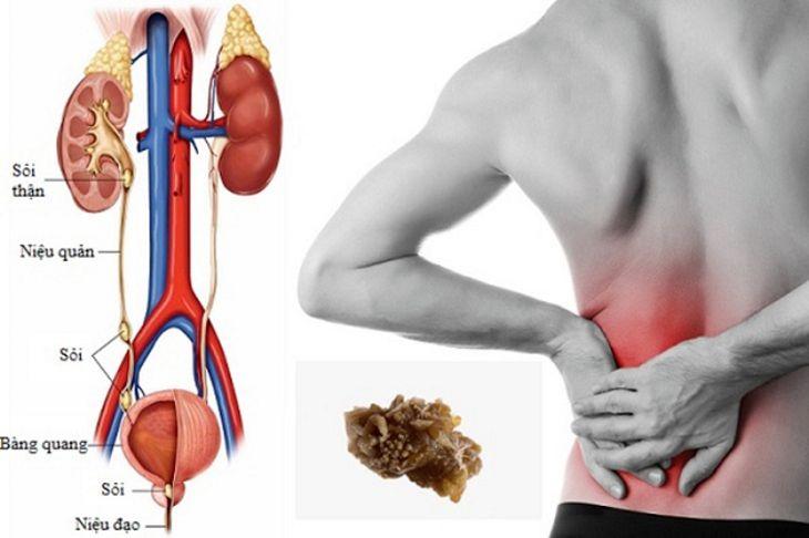 Người bệnh sẽ có cảm giác đau ở vùng xung quanh hông