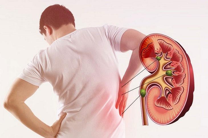 Suy thận là biến chứng do người bệnh bị sỏi niệu quản gây nên