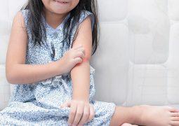 Tình trạng ngứa ngáy khó chịu gây nhiều ảnh hưởng tới cuộc sống sinh hoạt, học tập của bé Phương Vy